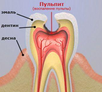 Симптомы и лечение пульпита зуба