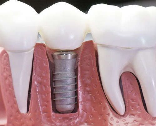 Имплантация зубов. Нужна?!